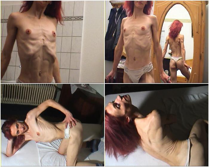 Skinnyfans Skinny Anorexic